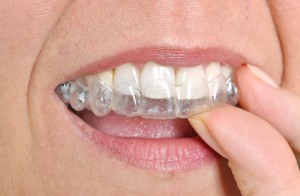 invisalign in carlisle is the clear solution