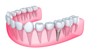 Care for Dental Implants with Tips from Your Carlisle Dentist