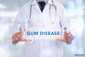 dental holding picture of gum disease