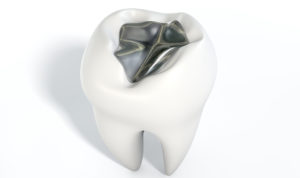 tooth crown with silver filling