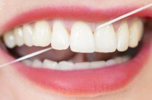 Piece of floss between front teeth