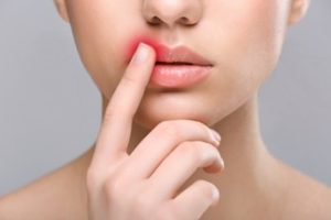 Woman with a red spot on her lip and her finger is touching it.
