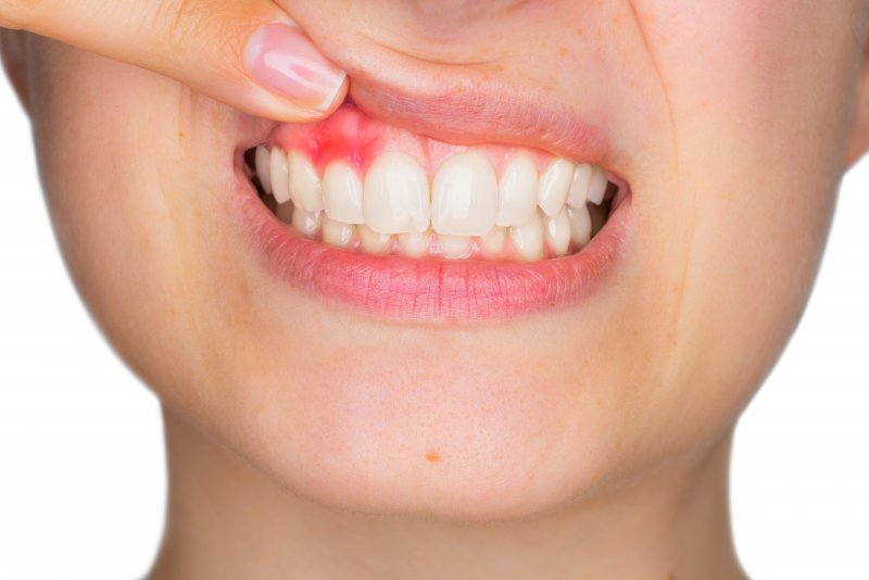 person pointing at red and inflamed gums